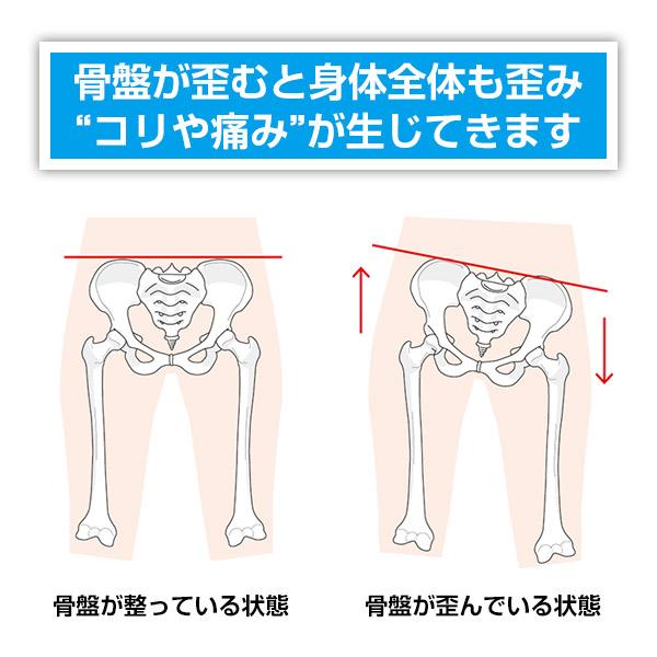 骨盤が歪むと身体全体も歪み「コリや痛み」が生じてきます。